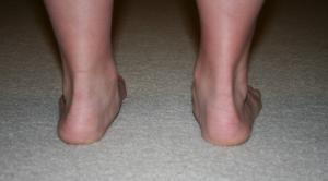 Pronation-of-feet