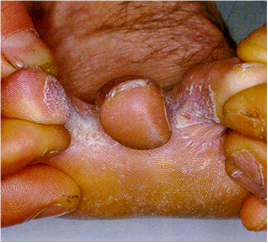 Foot Fungus | Footdoctor